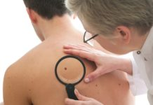 cos'è un melanoma
