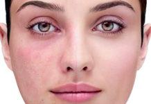 Dermatite atopica? Ecco i cibi irritanti da evitare