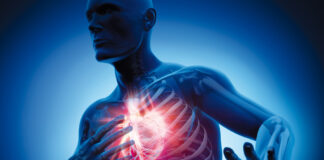 Un batterio intestinale complice dell'infarto